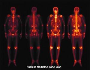 Nuclear Medicine Scan